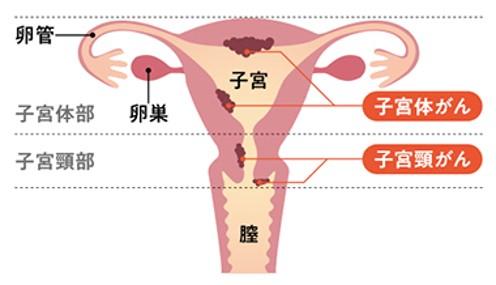よもぎ蒸しの温かい蒸気と共に膣から入った薬効成分が、膣や子宮内に付着したがん細胞を消してくれる